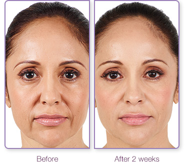 Juvederm XC before after