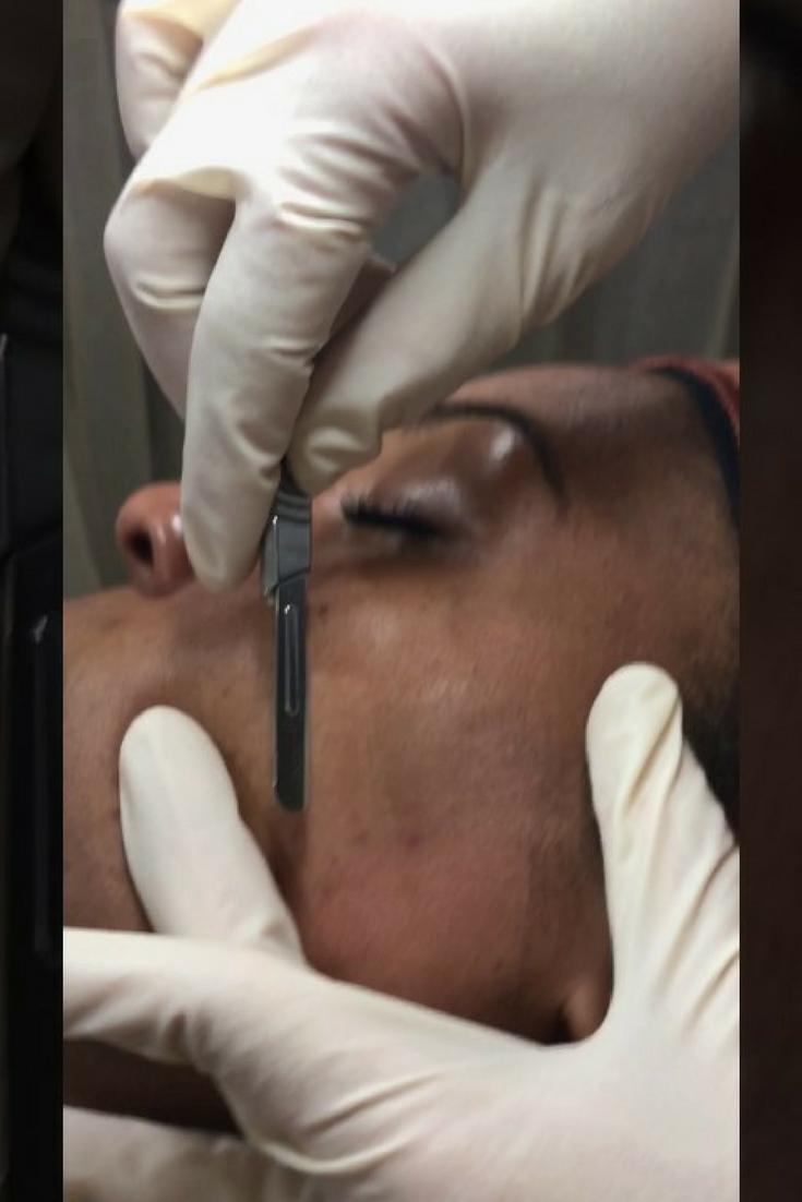 Best Medspa Treatments For African American Skin
