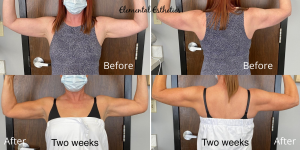 Emsculpt-Arms-Before-After