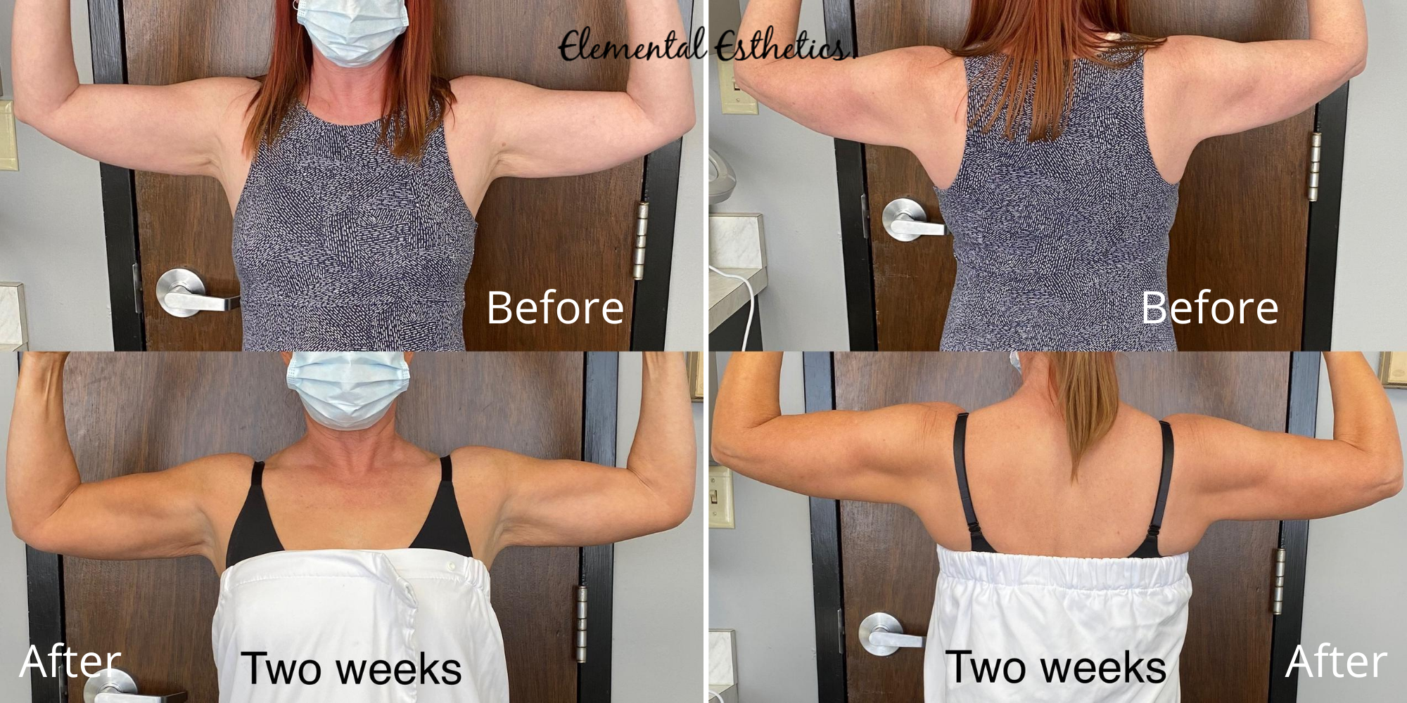 Emsculpt-Arms-Before-After-Pain-Relief