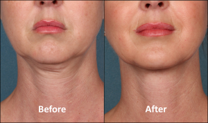 Kybella.before.after