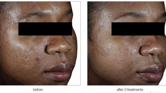 Best MedSpa Treatments For African American Skin - Elemental