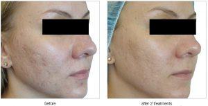 viva-beforeafter-acne-scars