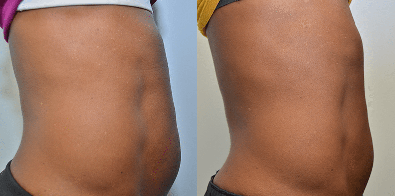 coolsculpting-stl