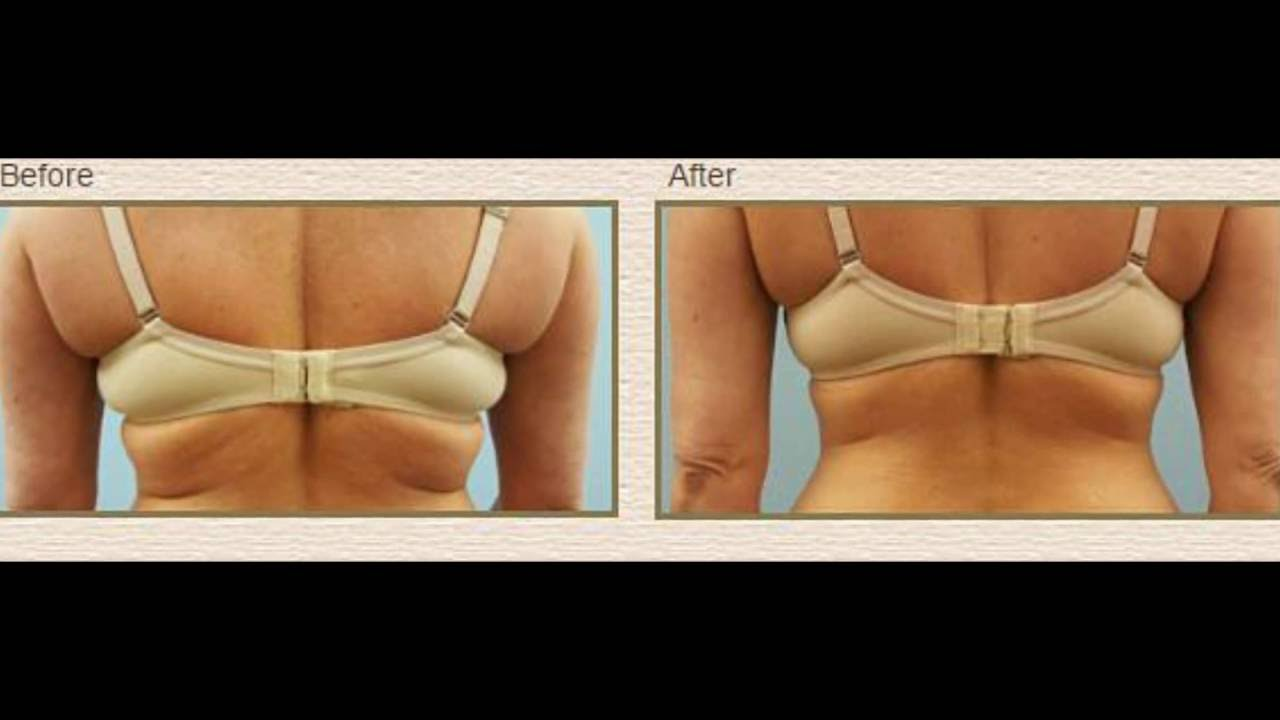 mini-coolsculpting-stl