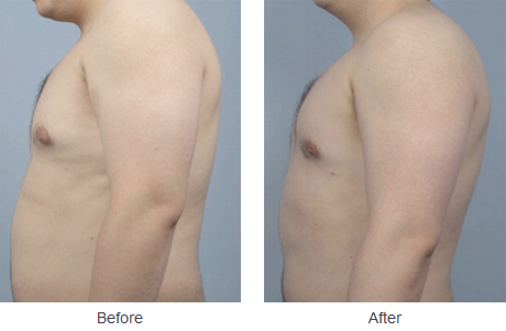 coolsculpting-st-louis