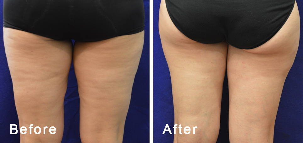 cellulite-remove-st-louis