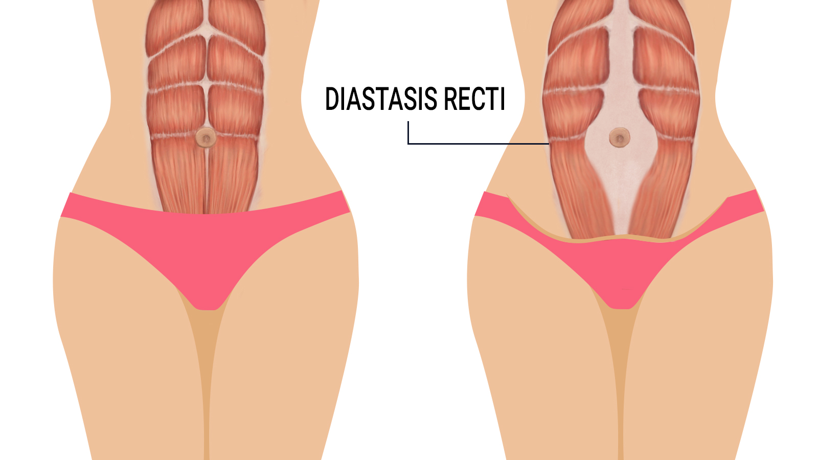 emsculpt-works-on-diastasis-recti