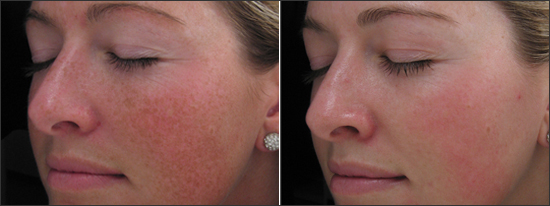 What Is An IPL (Photofacial) And What Can It Do For My Face?