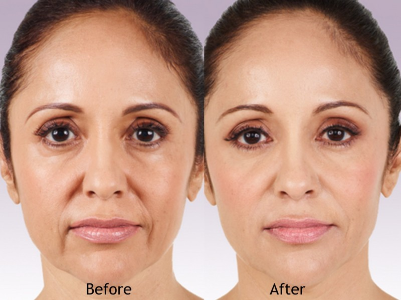 Are Your Botox and Filler Injectables Safe and Effective