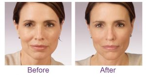 juvedermbeforeafter