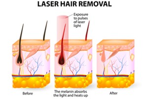 laser-hair-removal-st-louis