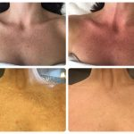 remove-age-spots-from-chest