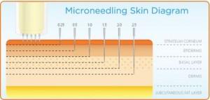 microneedling-stl