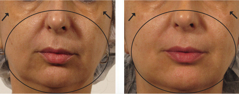 fix-melasma-st-louis