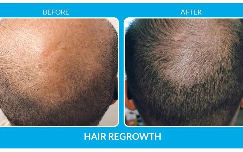 hair-restoration-st-louis