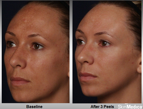 rejuvenize_case_1_after_3_peels1