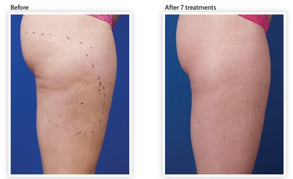reduce-remove-cellulite