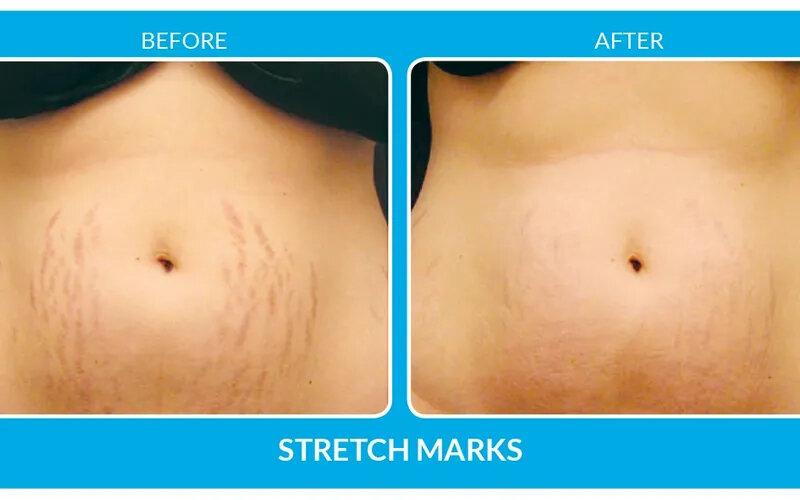 MicroChannel-stretchmarks