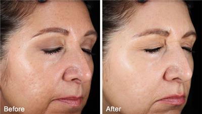 fix-acne-scars-stl