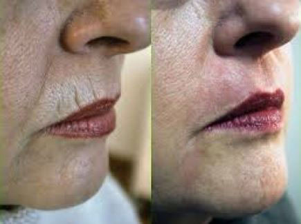remove-lip-lines