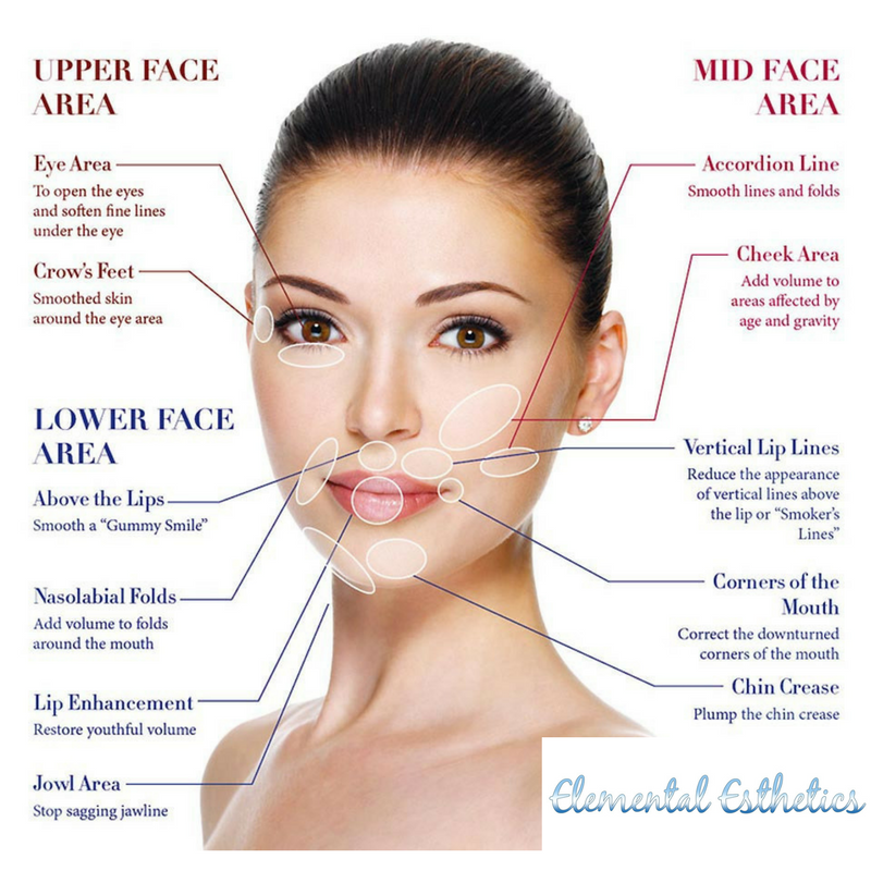 What Is The Difference Between Botox and Filler